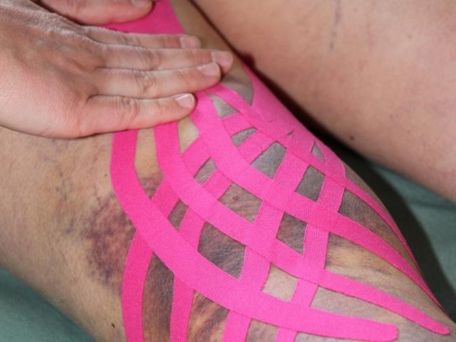 bendaggio neuromuscolare